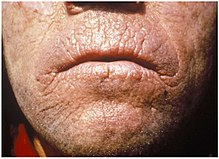 The skin of an adult face that is thickening with a waxy or leathery appearance, also with areas of hyperkeratosis