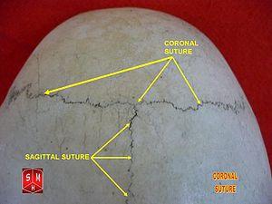 Coronal suture - Image: Coronal suture 2