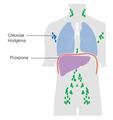 Diagram showing stage 1 Hogkin's lymphoma CRUK 191 pl.png