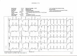 Description de l'image Ekg abnormal bionerd.jpg.