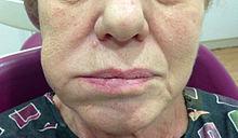 Flemón dental - Wikipedia, la enciclopedia libre