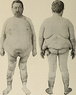 Adiposis dolorosa rare condition characterized by generalized obesity and fatty tumors in the adipose tissue.