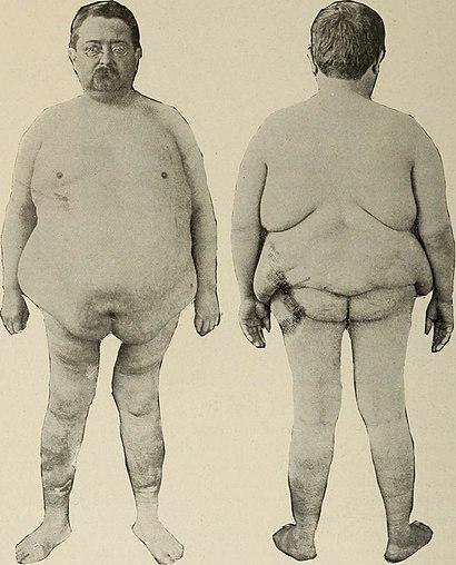 Nervous and mental diseases (1919) (14781727145).jpg