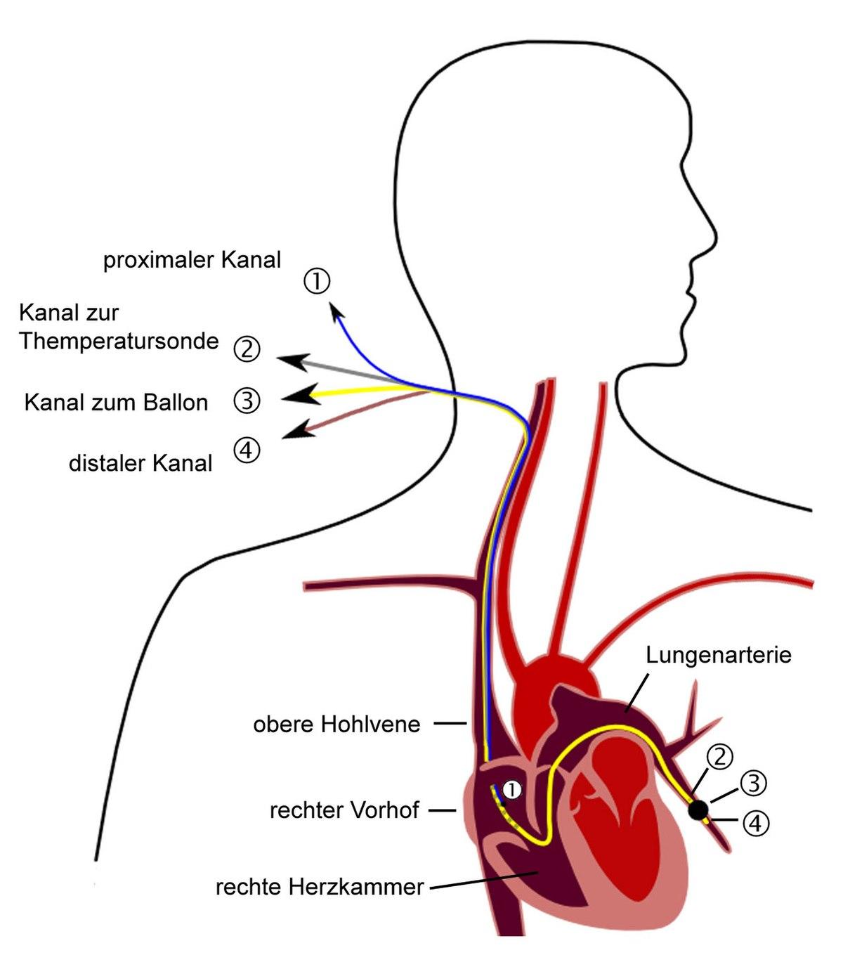Swan-Ganz-Katheter – Wikipedia