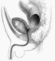 Rectobladderneckfistula.png