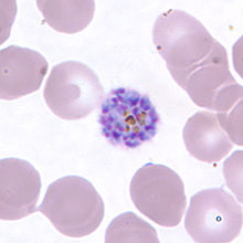Schizont of P. vivax in a thin blood smear.jpg