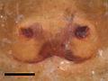Zygoballus electus epigyne with scale.jpg