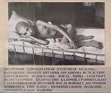 Жертва«Ленинградской болезни» — дистрофии