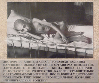 World War II casualties of the Soviet Union - A victim of starvation in besieged Leningrad suffering from muscle atrophy in 1941