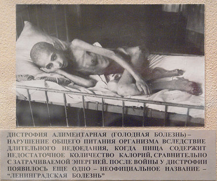 A victim of starvation in besieged Leningrad suffering from muscle atrophy in 1941 Дистрофия алиментарная.jpg