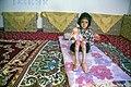 بیماری پروانه ای یا بیماری ای بی در کودکان مناطق محروم جنوب کرمان- ایران 03.jpg
