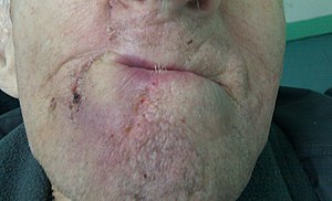 Lip reconstruction - Image: Abbe Estlander flap 12 days after 1st op