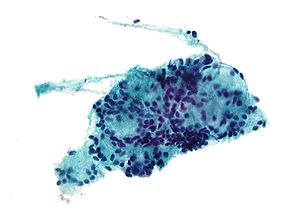 Micrograph of adenoid cystic carcinoma. Pap st...