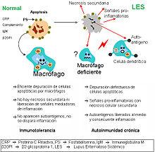 diabetes tipo 2 fisiopatología y características clínicas del lupus sistémico