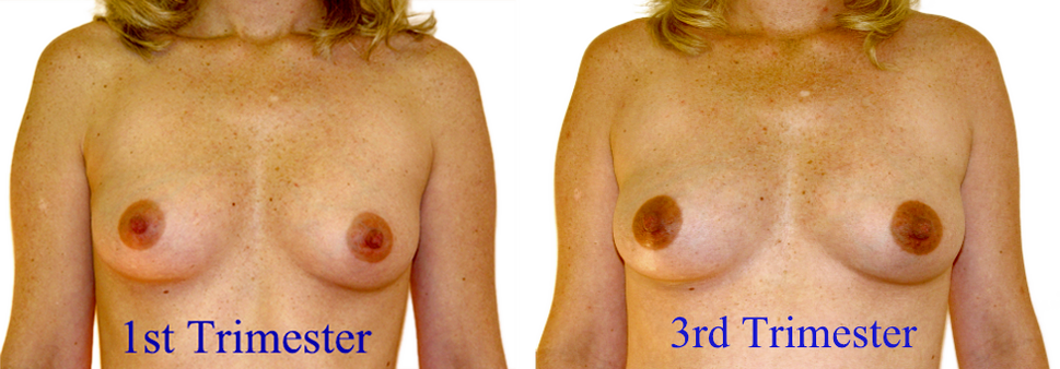 Breast changes during pregnancy 1