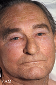 Nice Causes of facial swelling edema thick skin