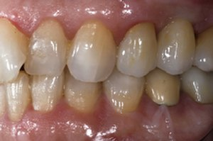 Abutment (dentistry) - Ceramic crown bonded to abutment