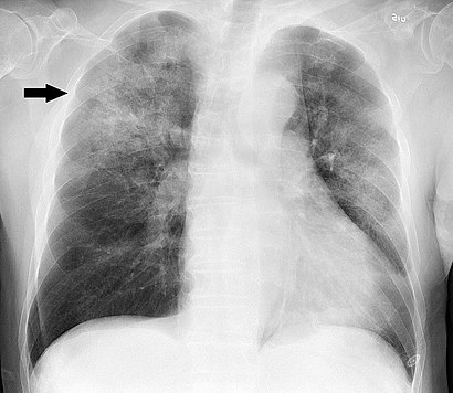 Chest radiograph in influensa and H influenzae, posteroanterior, annotated.jpg