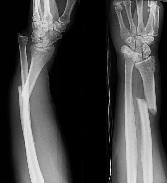 File:Galeazzi Fracture of Distal Radius.jpg