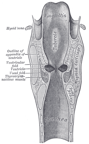 Laryngeal ventricle - Coronal section of larynx and upper part of trachea, with Ventricle labeled at center left.
