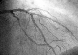 Coronary catheterization - A coronary angiogram (an X-ray with radiocontrast in the coronary arteries) that shows the left coronary circulation.  The distal left main coronary artery (LMCA) is in the left upper quadrant of the image.  Its main branches (also visible) are the left circumflex artery (LCX), which courses top-to-bottom initially and then toward the centre/bottom, and the left anterior descending (LAD) artery, which courses from left-to-right on the image and then courses down the middle of the image to project underneath of the distal LCX.  The LAD, as is usual, has two large diagonal branches, which arise at the centre-top of the image and course toward the centre/right of the image.