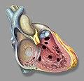 Heart right vsd.jpg