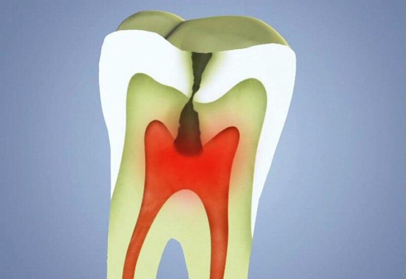 Kredit: DentalCare / Wikimedia Commons.