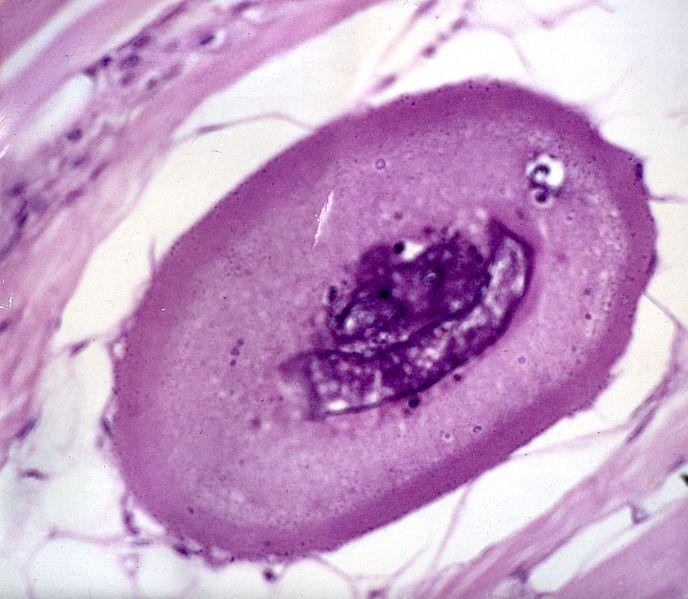 File:Larva de trichinella spiralis img397.jpg