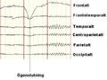 Normalt EEG vaken vuxen.PNG
