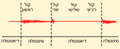Phonocardiogram of mitral regurgitation-HE.PNG