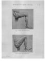Richer - Anatomie artistique, 2 p. 140.png