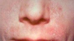 que es la psoriasis wikipedia