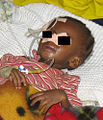 Severely malnourished child with feeding tube.jpg