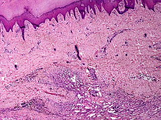 Angiomatosis benign vascular malformation involving skin, subcutaneous tissue, skeletal muscle and occasionally bone
