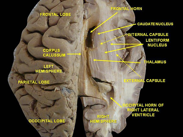 brain lateralization Language is defined as a method of human communication through organized words, either spoken or written lateralization is referred to as the localization of functions in the brain, commonly attributed to its left hemisphere and right hemisphere.