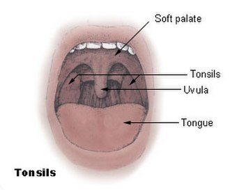 Palatine tonsil - The Palatine tonsils with the soft palate, uvula, and tongue visible.