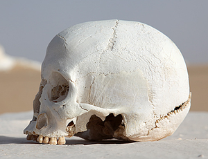Occipital bone - Human skull (Occipital bone is at bottom right).