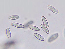 several partly transparent oval objects in a microscope field