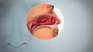 Anosmia Inability to smell