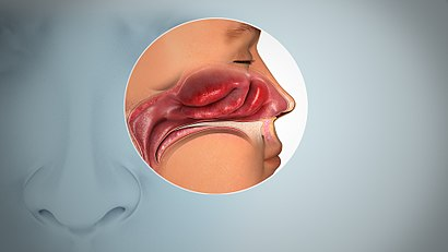 A side view anatomical drawing of the nasal sinuses depicting inflamed mucosa.