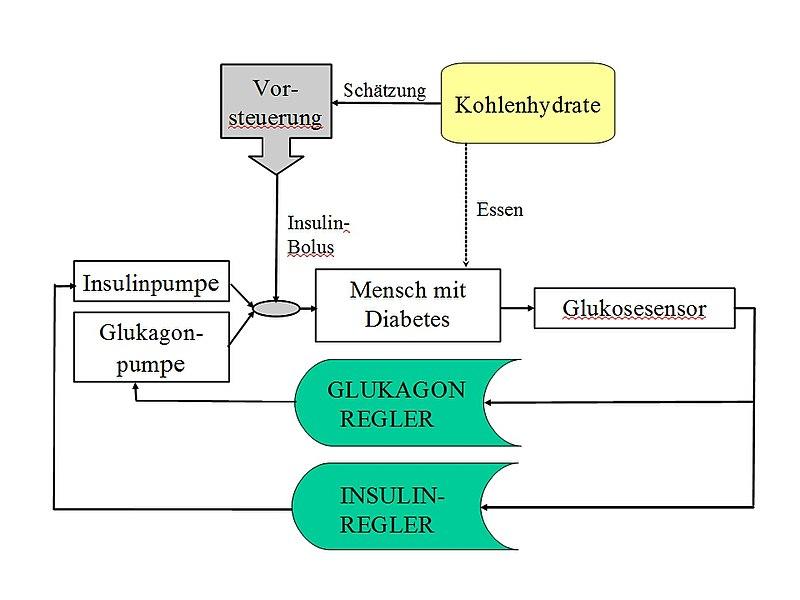 Künstliche Bauchspeicheldrüse - Wikiwand