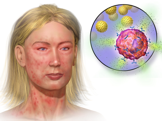 Mast cell - Illustration depicting mast cell activation and anaphylaxis
