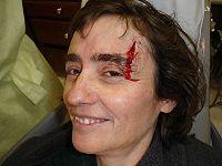 Minor traumatic bleeding from the head