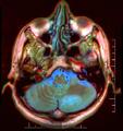 Brain MRI 143335 rgbca.png
