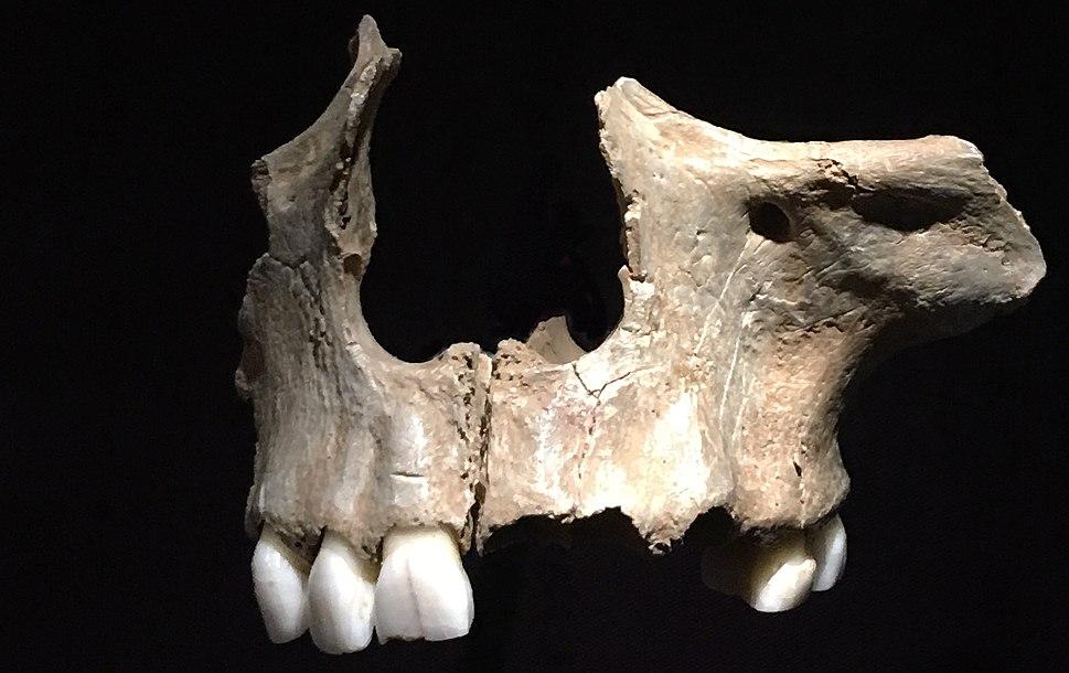 Cannibalised maxilla