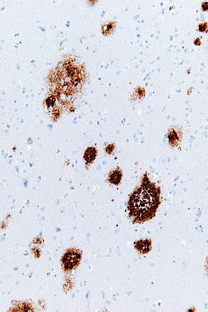 Senile plaques - Amyloid beta immunostaining showing senile plaques.