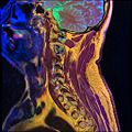 Cervical spine MRI T1FSE T2frFSE STIR 11.jpg
