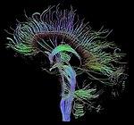 DTI-sagittal-fibers.jpg
