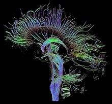 Cerebro Humano con DTI
