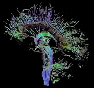 Neurolinguistics - An image of neural pathways in the brain taken using diffusion tensor imaging.